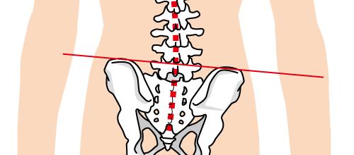 骨盤・背骨の歪み